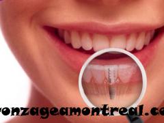 implant istanbul, implant diş, implant diş tedavisi