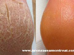 çatlamış topuk tedavisi, topuk çatlağı bakımı, topuk bakımı yapımı