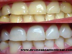 diş beyazlatma yolları, diş nasıl beyazlar, diş beyazlatmanın yöntemleri
