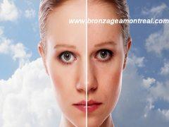 yüz germe ameliyatı, yüz gerdirme operasyonları, yüz gerdirme işlemi nasıl yapılır