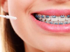 ortodonti tedavisi ne zaman uygulanır, hangi durumlarda ortodonti tedavisi uygulanır, ortodonti tedavisinin etkileri