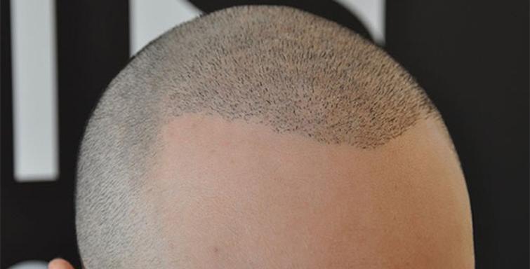 saç ekim merkezleri, saç ekim merkezlerinin performansı