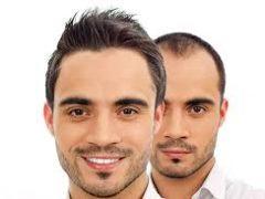 saç ektirme, saç ekimi ile ilgili bilgiler, saç ekimi hakkında bilgi