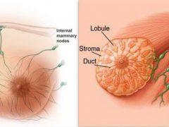 göğüs kanseri ameliyatı, göğüs kanseri operasyonu