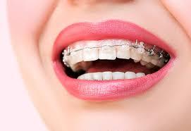 şeffaf diş teli kullanımı, şeffaf diş teli tercihi