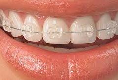 şeffaf diş teli, diş teli nasıl takılır, diş teli takma maliyeti