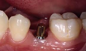 implant yaptırma, implant yaptıran ünlüler, implant yapımı
