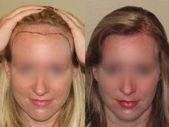 saç ekimi, saç ekiminde saç çizgisi, saç çizgisi nedir