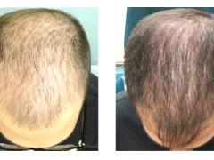 saç nakli, yanık bölgeye saç nakli, dikiş bölgesine saç nakli