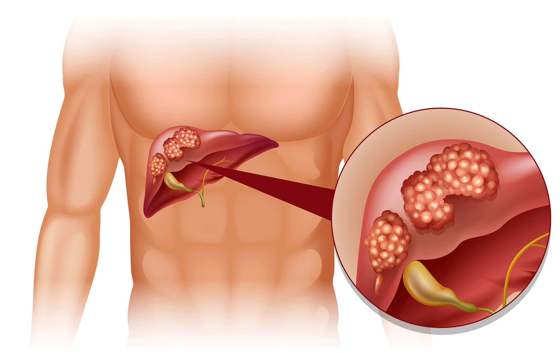 karaciğer kanseri, karaciğer kanseri nedenleri, karaciğer kanseri tedavisi