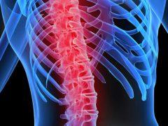omurga tümörü nedir, omurga tümörü tanısı, omurga tümörü ne demek